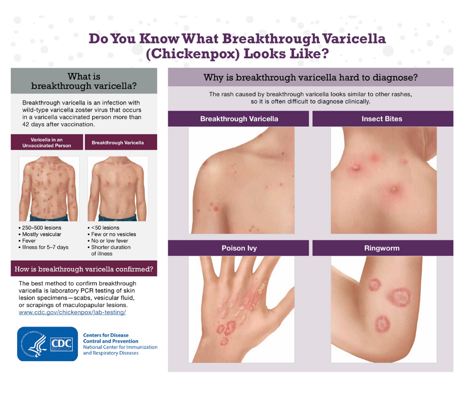CDC says: Breakthrough varicella is now more common than typical chickenpox